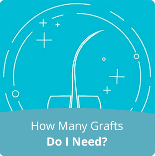 How-Many-Grafts-Do-I-Need-