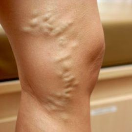 Varicose veins are not treated with leeches
